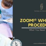 Zoom! ® Whitening Procedure: What You Need to Know