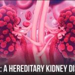Ayurvedic Management for Autosomal Dominant Polycystic Kidney Disease